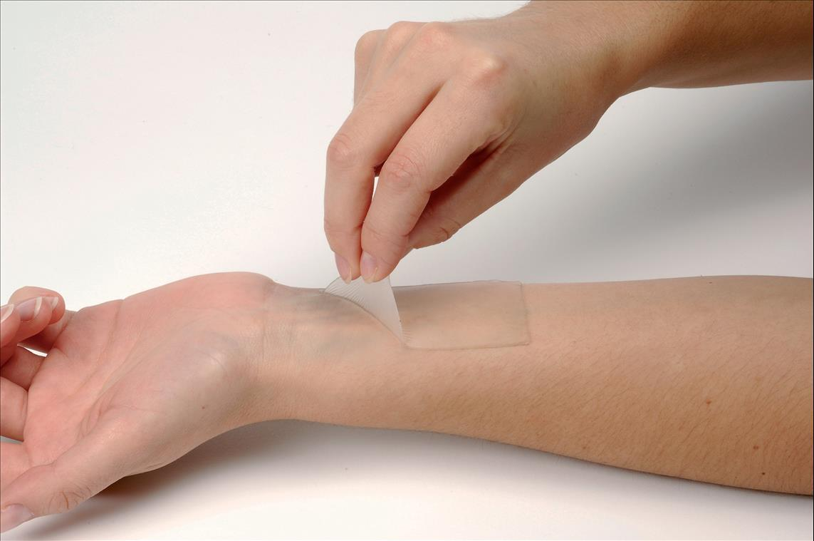Global Topical Skin Adhesive Market 2020 Growth Factors – J&J (Ethicon),  GluStitch, Medline, Medtronic, Adhezion Biomedical – Owned