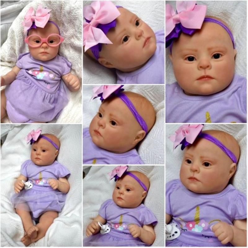 طفل متلازمة داون حديثي الولادة